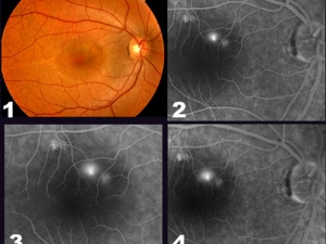 Smokestack in Central Serous Chorioretinopathy