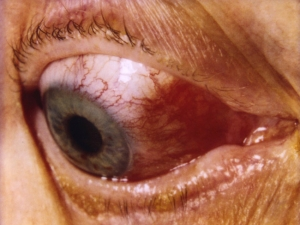 Sectoral Scleritis