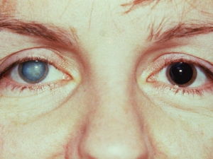 Fuch's Heterochromic Iridocyclitis Cataract