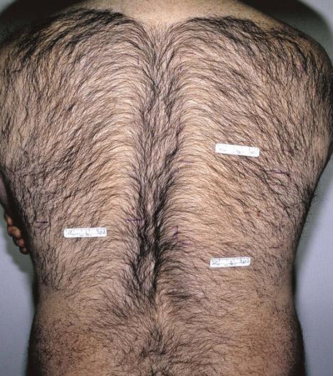 волосатые женские телеса фото